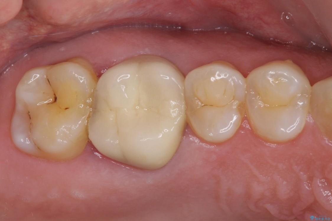 歯磨きの度に歯ぐきから出血する 歯周外科処置を伴う奥歯の補綴治療 ビフォー
