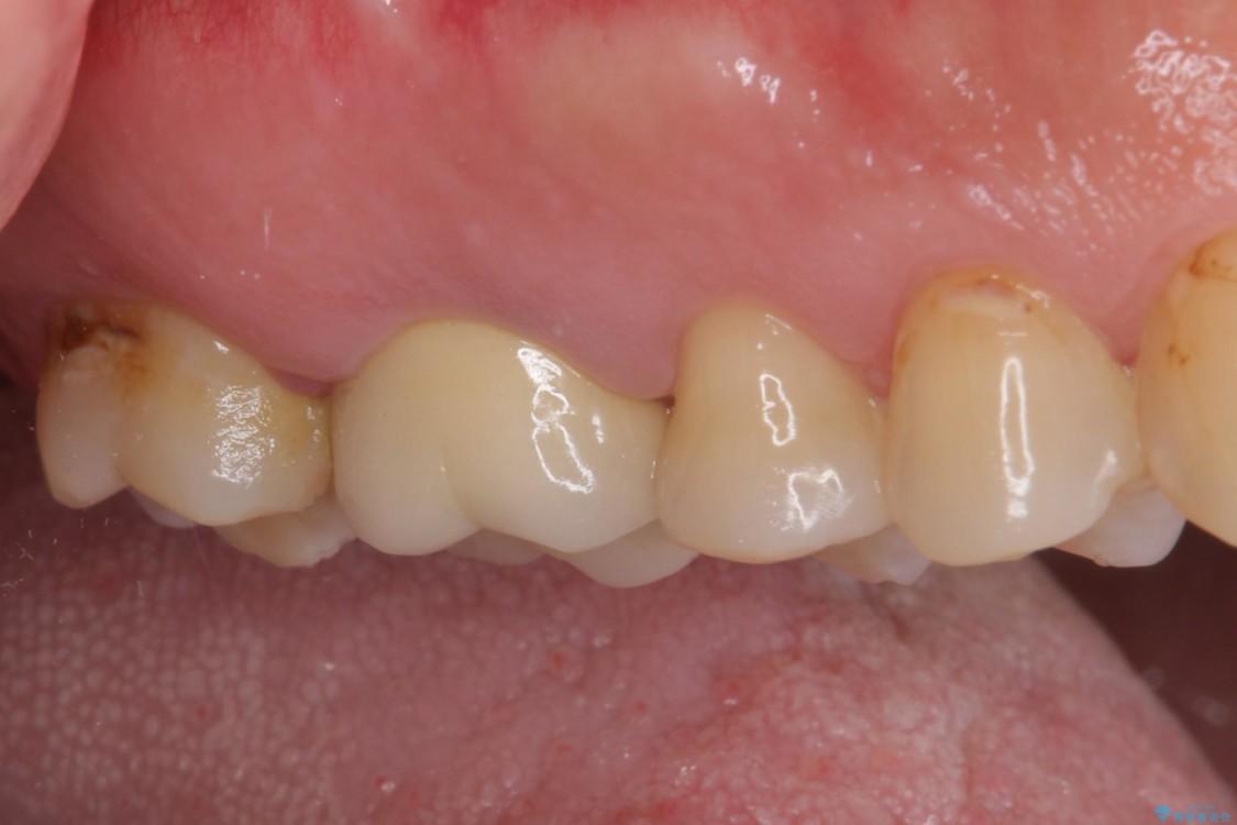 歯磨きの度に歯ぐきから出血する 歯周外科処置を伴う奥歯の補綴治療 治療前画像
