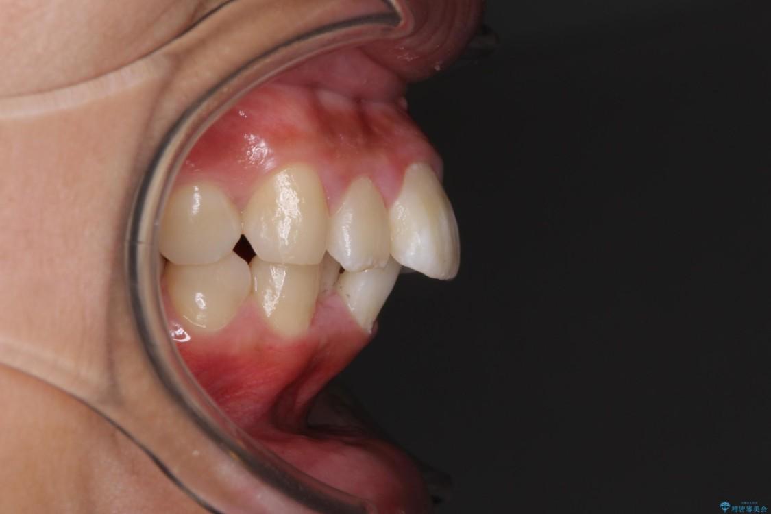 口が閉じられない 抜歯矯正で口元をスッキリと ビフォー