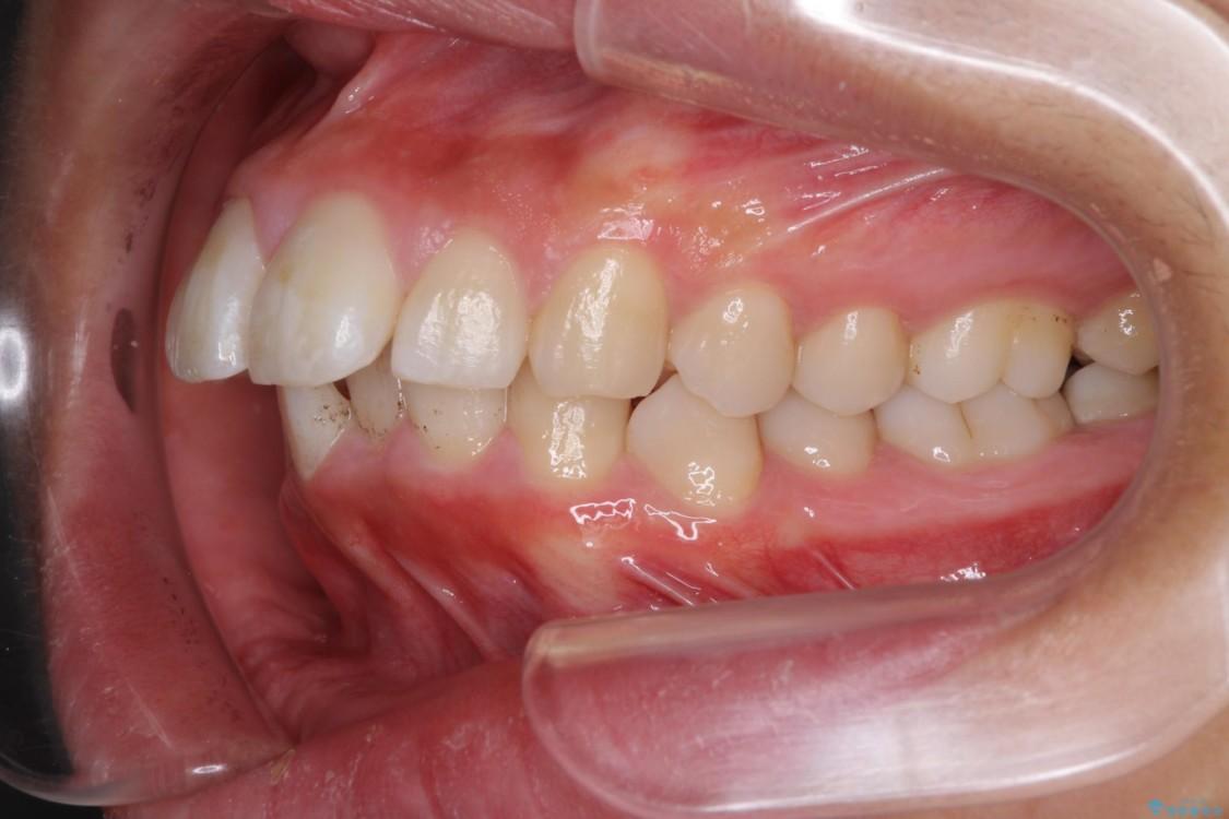 口が閉じられない 抜歯矯正で口元をスッキリと 治療前画像