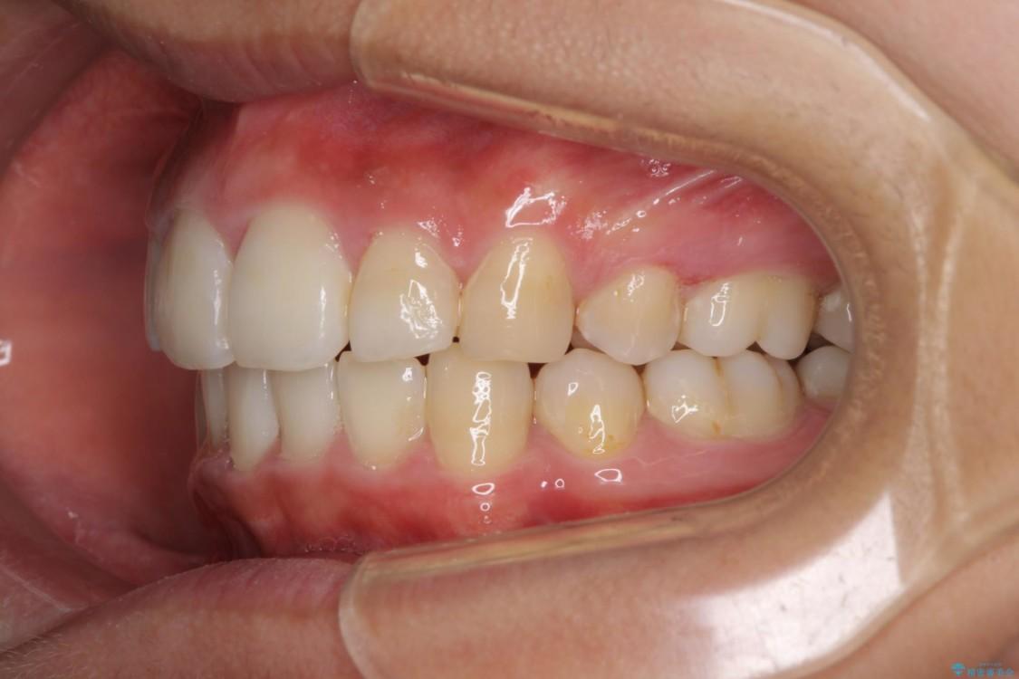 口が閉じられない 抜歯矯正で口元をスッキリと 治療後画像