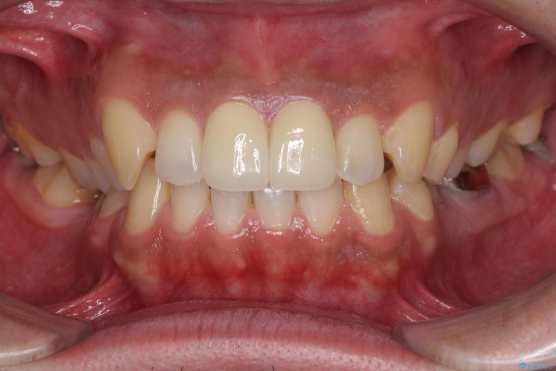 前歯の捻れを解消したい オールセラミッククラウンによる審美治療 治療後画像