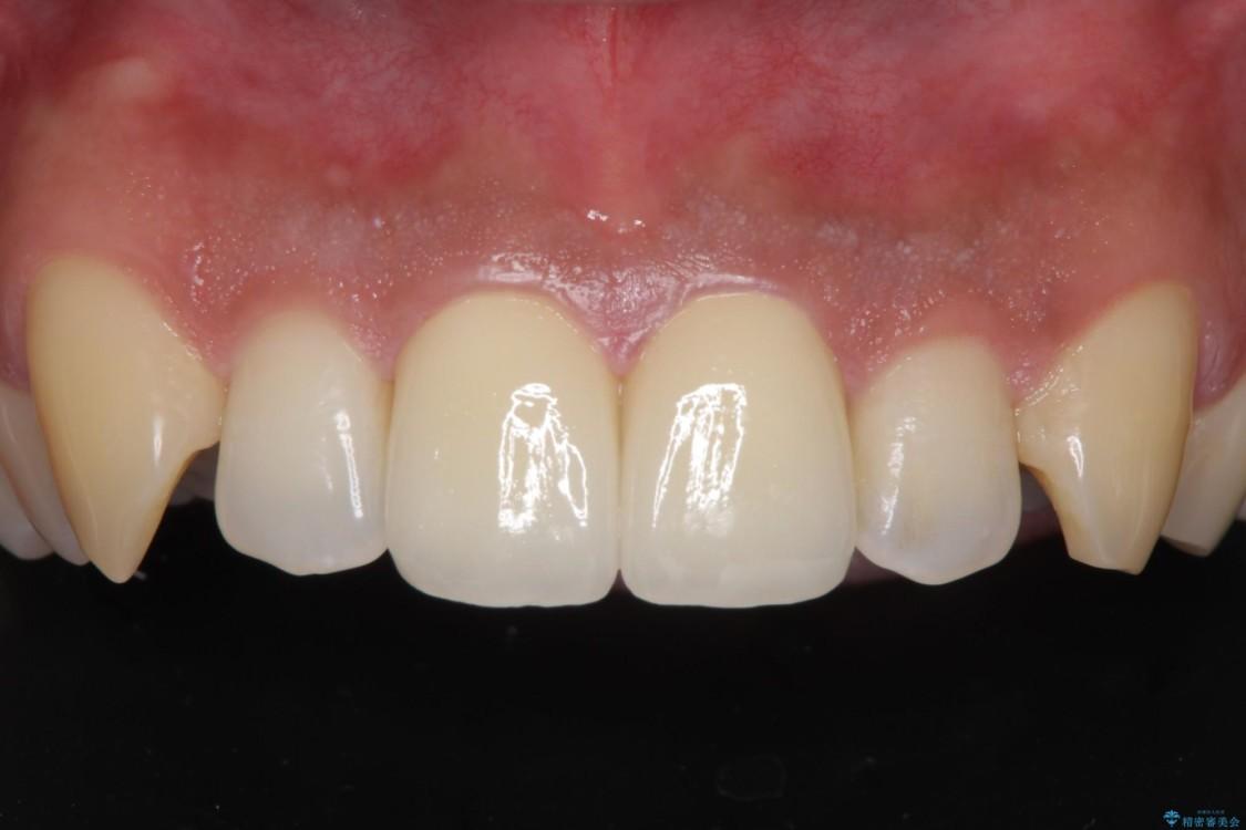 前歯の捻れを解消したい オールセラミッククラウンによる審美治療 アフター