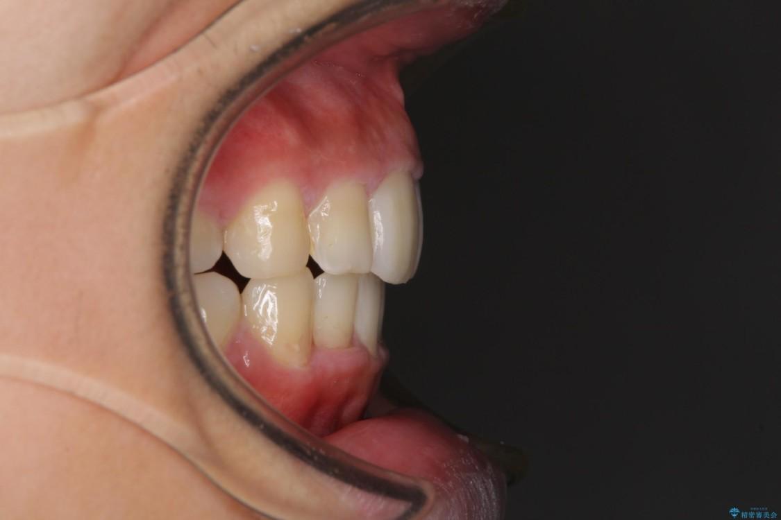 口が閉じられない 抜歯矯正で口元をスッキリと アフター