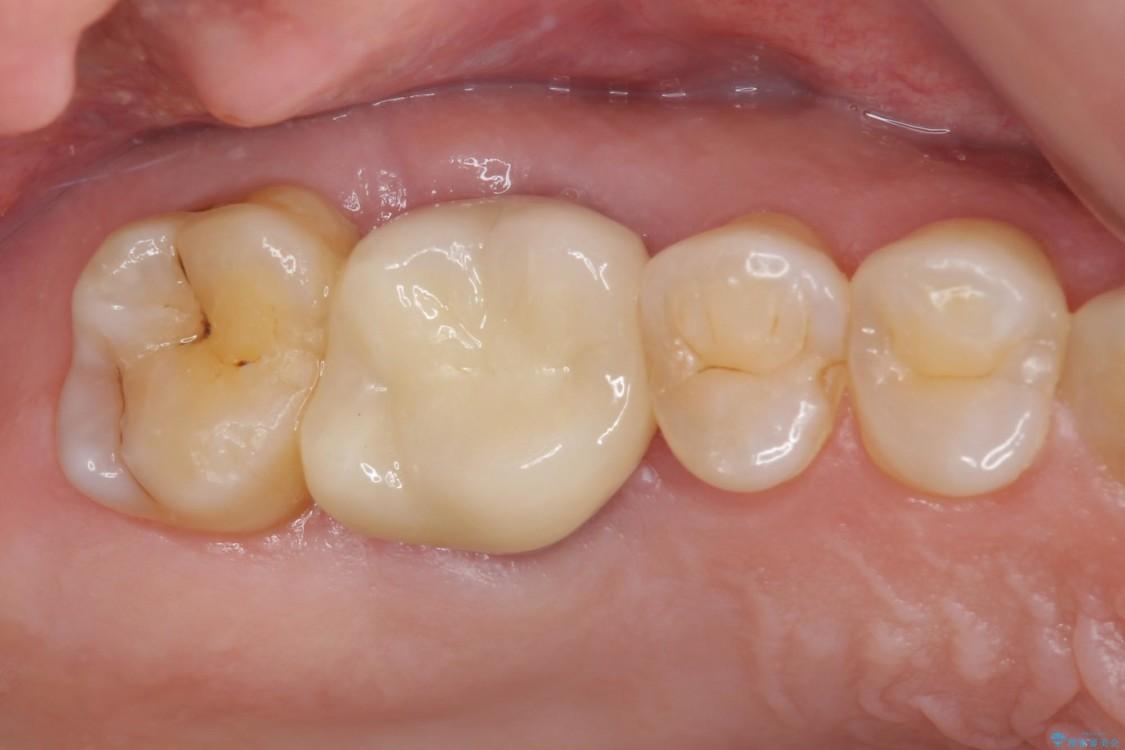 歯磨きの度に歯ぐきから出血する 歯周外科処置を伴う奥歯の補綴治療 アフター