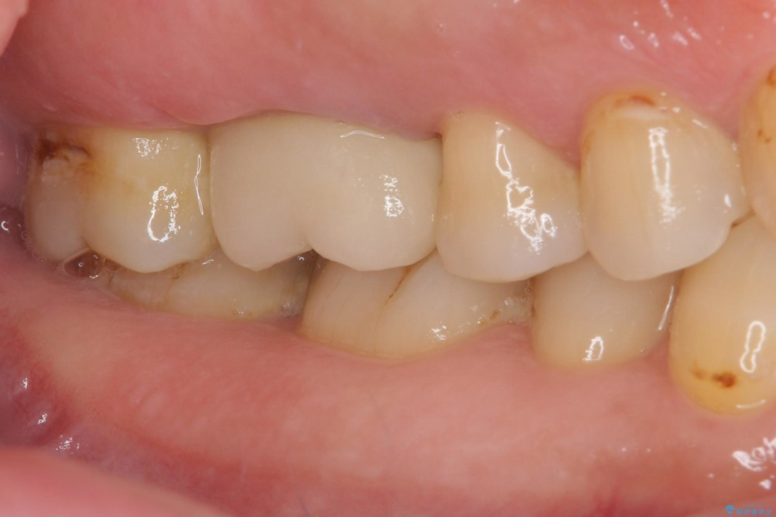 歯磨きの度に歯ぐきから出血する 歯周外科処置を伴う奥歯の補綴治療 治療後画像