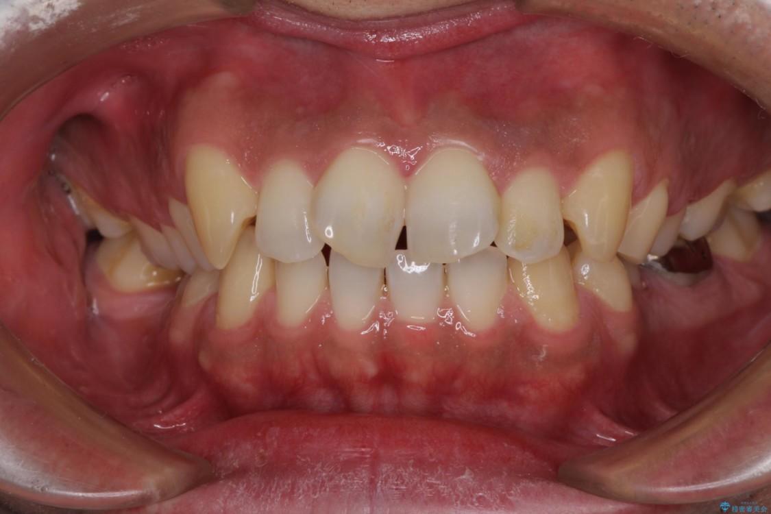 前歯の捻れを解消したい オールセラミッククラウンによる審美治療 治療前画像