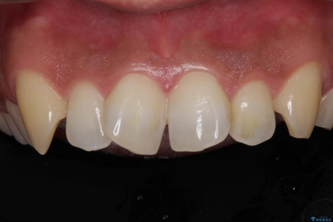 前歯の捻れを解消したい オールセラミッククラウンによる審美治療 ビフォー