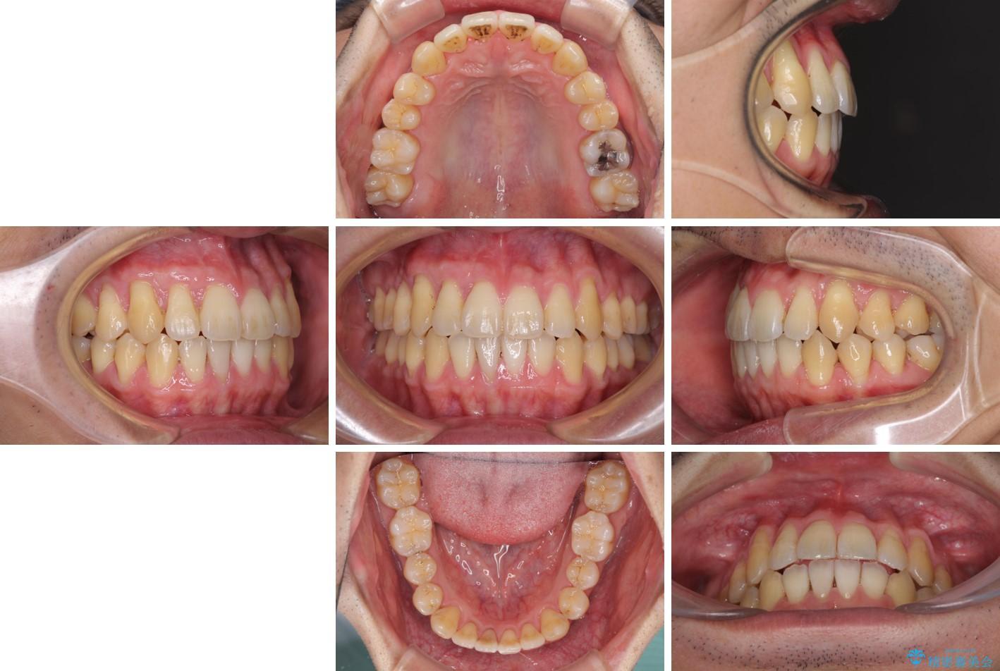 インビザラインによる矯正歯科治療と前歯の根面被覆 治療後画像