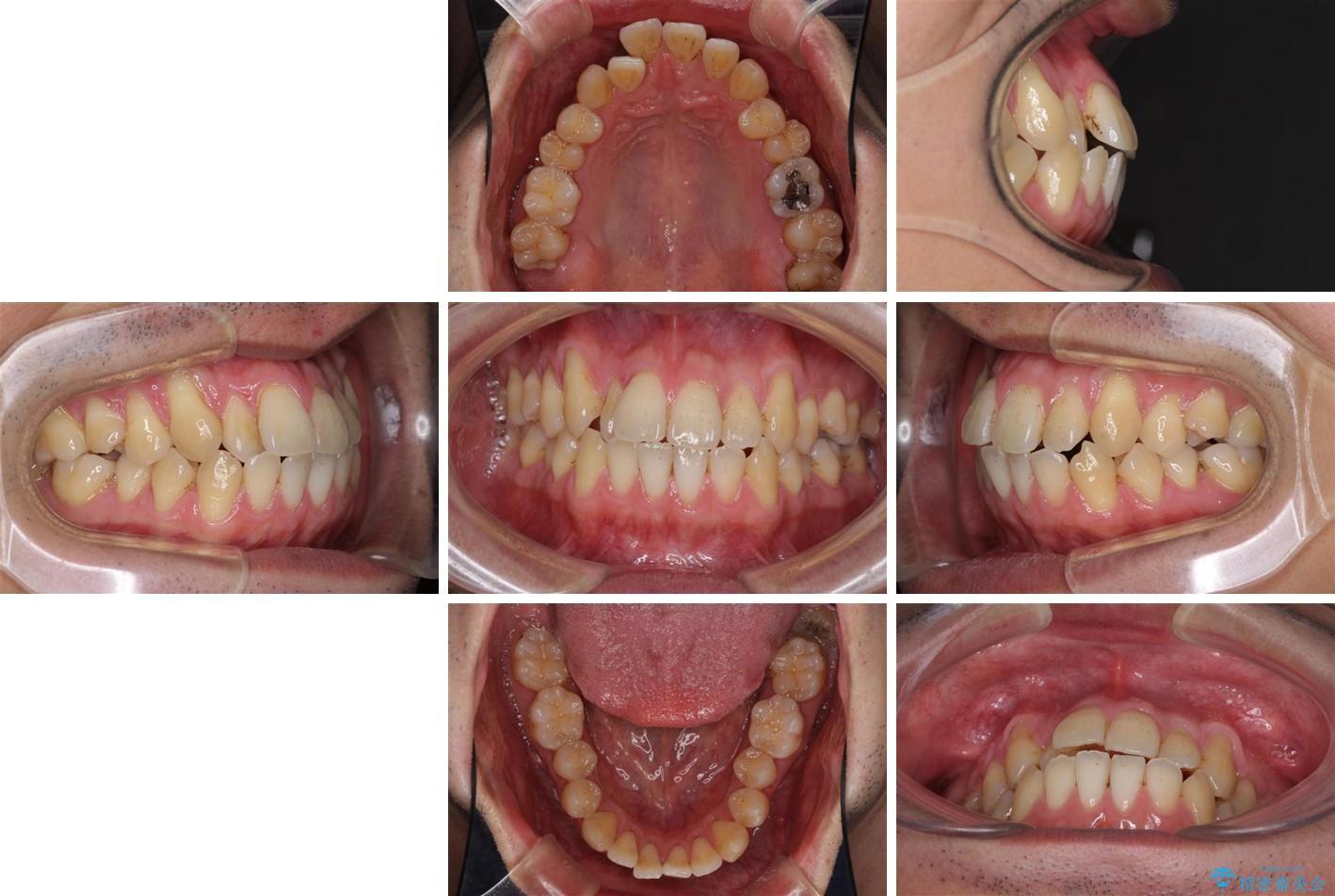 インビザラインによる矯正歯科治療と前歯の根面被覆 治療前画像