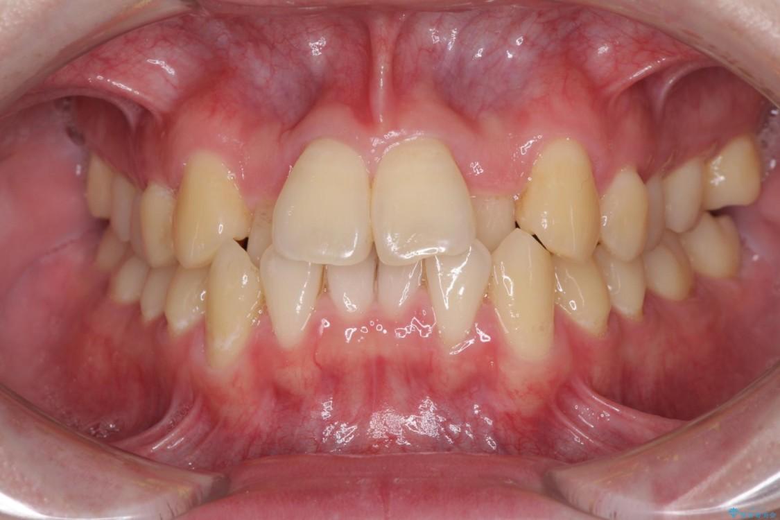 前歯のクロスバイト インビザラインによる矯正治療 ビフォー