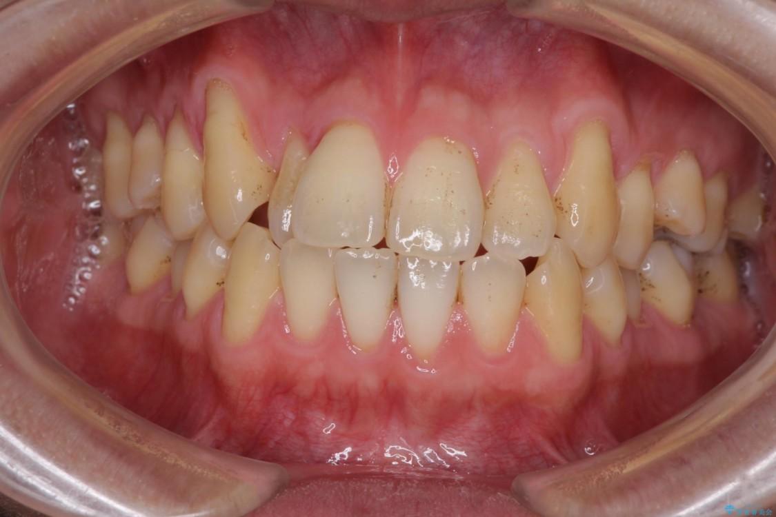 インビザラインによる矯正歯科治療と前歯の根面被覆 ビフォー