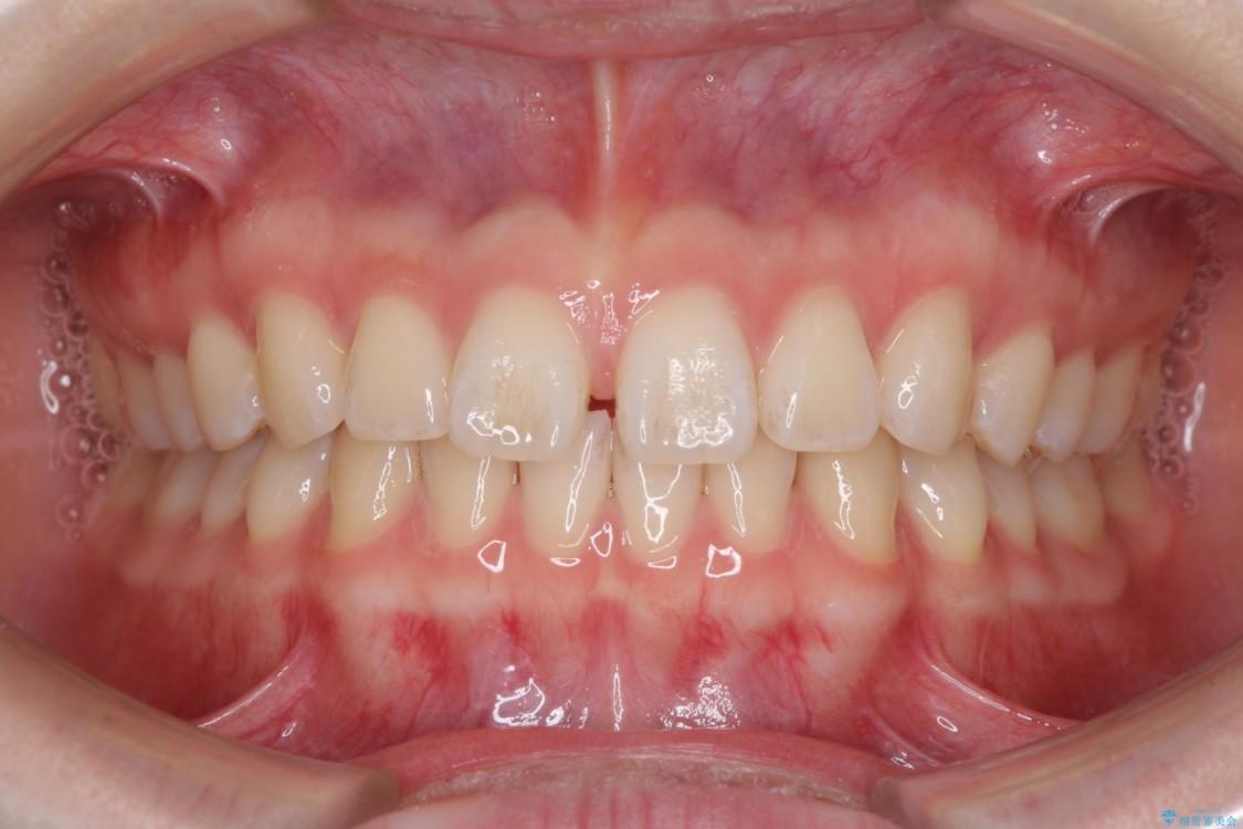 インビザラインによるすきっ歯の治療 ビフォー