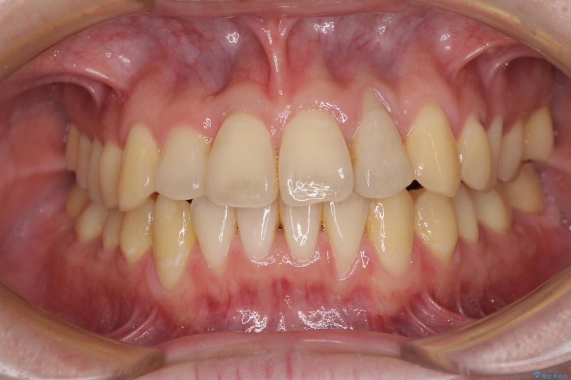 前歯のクロスバイト インビザラインによる矯正治療 アフター