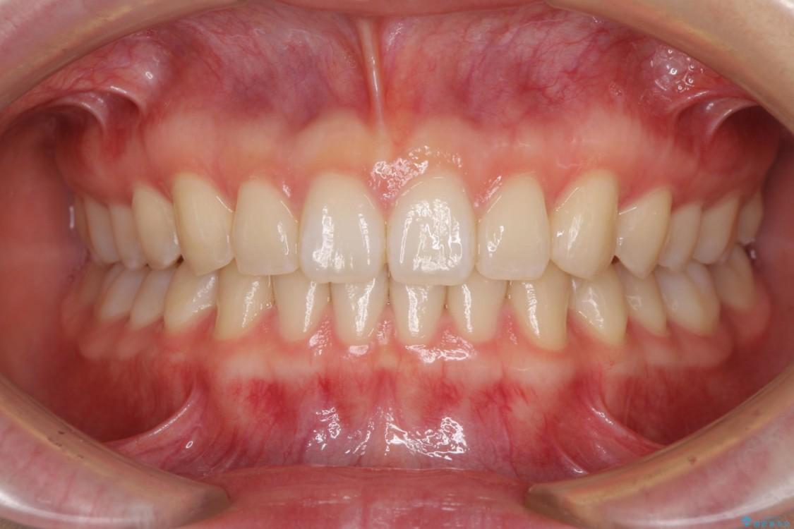 インビザラインによるすきっ歯の治療 アフター