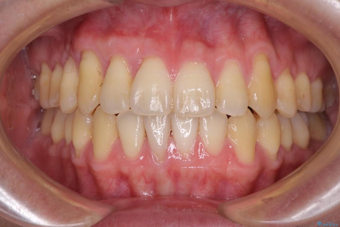 インビザラインによる矯正歯科治療と前歯の根面被覆 アフター