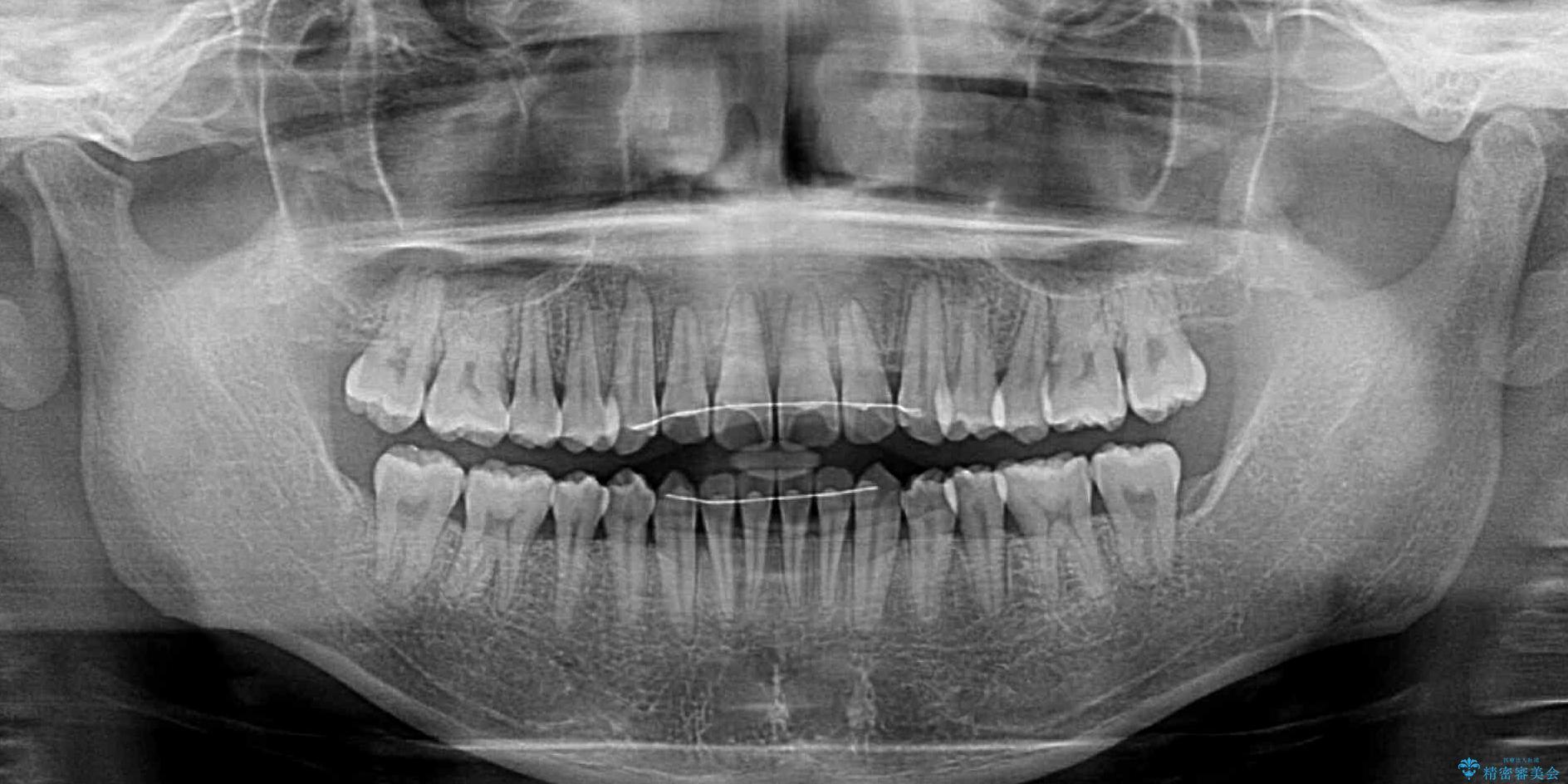 前歯のクロスバイト インビザラインによる矯正治療 治療後画像