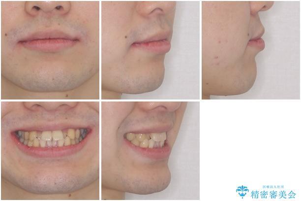 前歯のクロスバイト インビザラインによる矯正治療 治療前画像