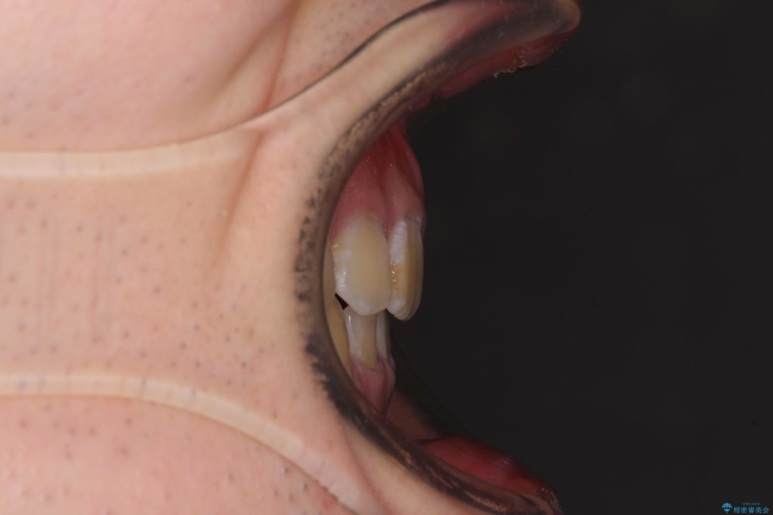 口元の閉じにくさとガタつきの解消 ワイヤー装置による抜歯矯正 アフター