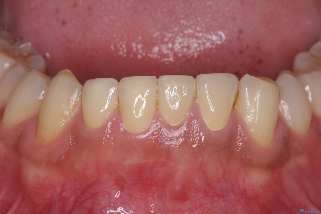 すり減ってしまった前歯 セラミッククラウンで自然な形に アフター