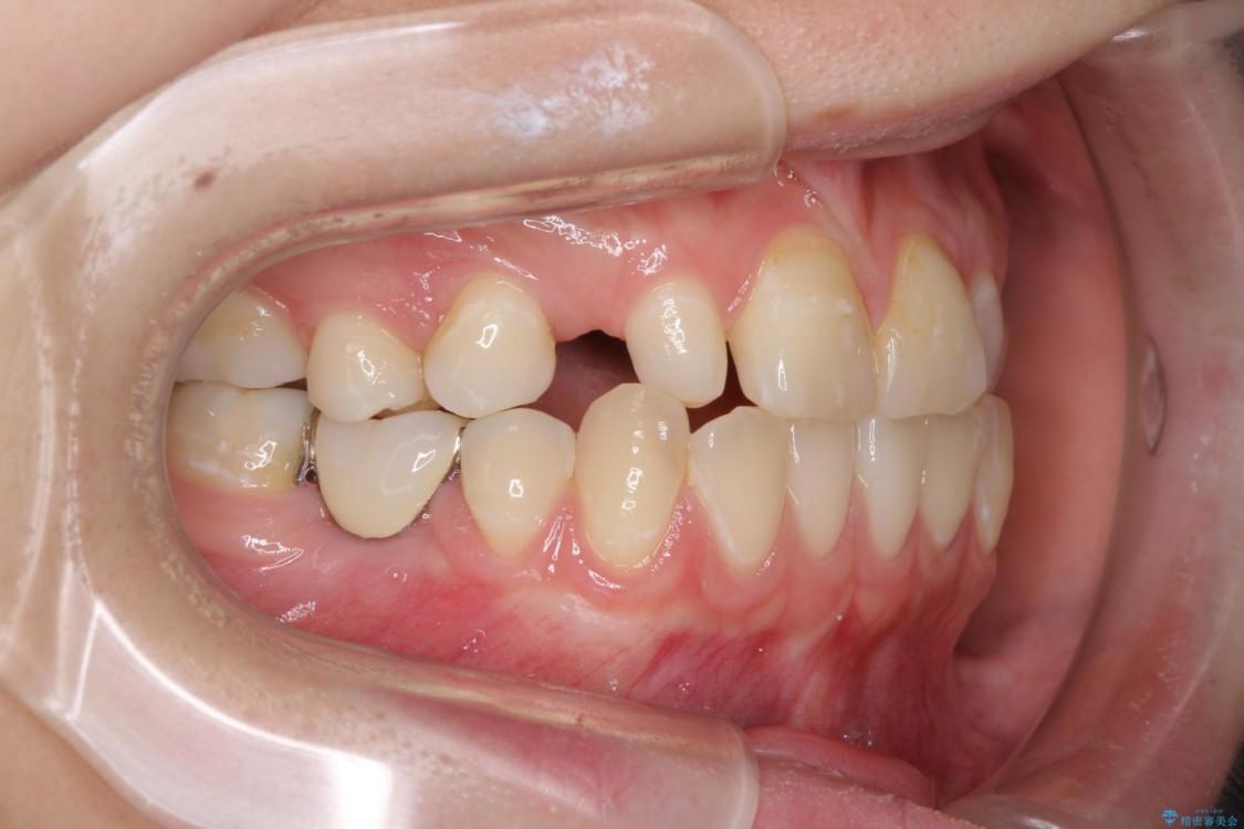 矯正治療とインプラント治療による欠損部と残存乳歯の改善 ビフォー