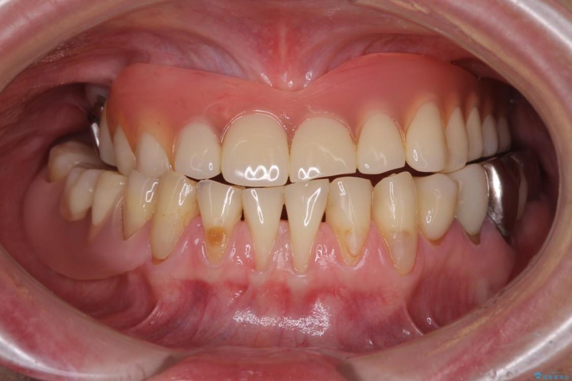 咬合による前歯の歯肉退縮 歯肉移植による根面被覆 治療前画像
