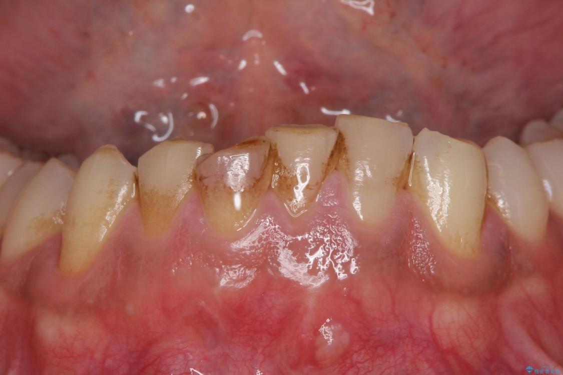 すり減ってしまった前歯 セラミッククラウンで自然な形に ビフォー