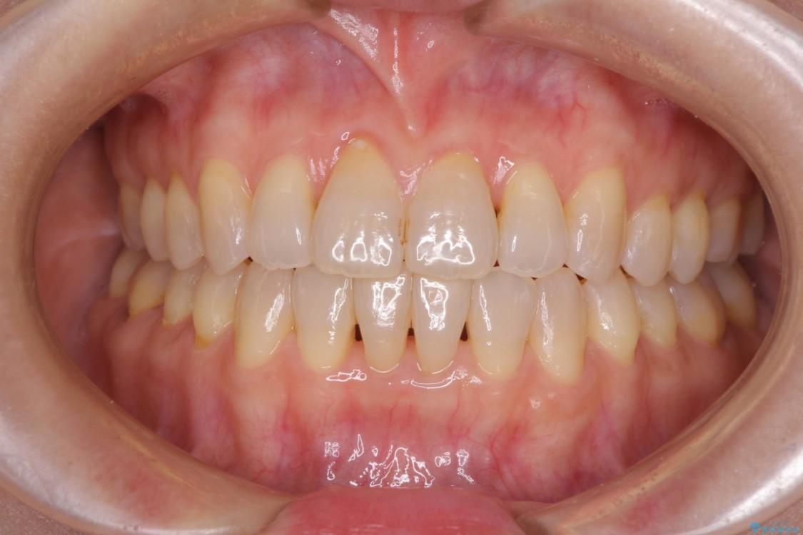 前歯の叢生と切端咬合 インビザラインによる矯正治療 アフター