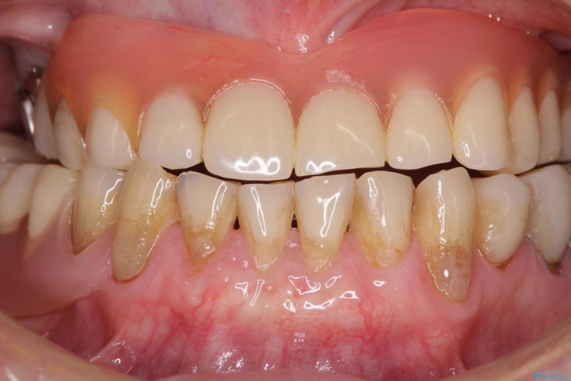 咬合による前歯の歯肉退縮 歯肉移植による根面被覆 治療後画像