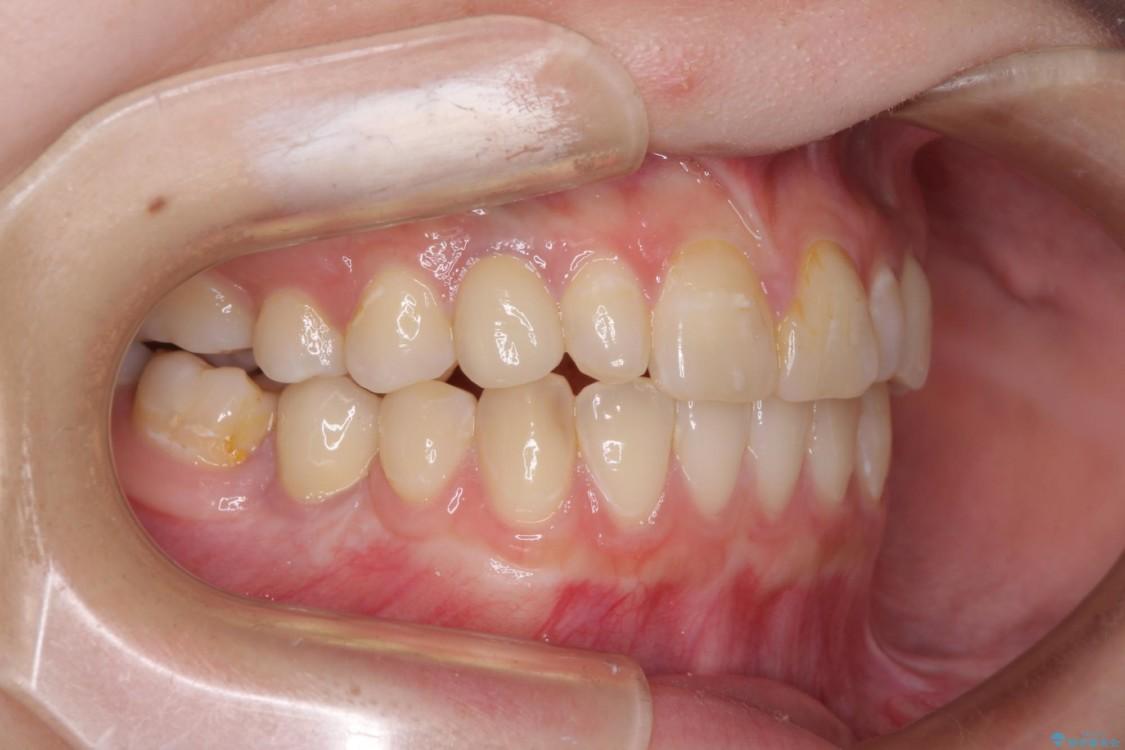 矯正治療とインプラント治療による欠損部と残存乳歯の改善 アフター
