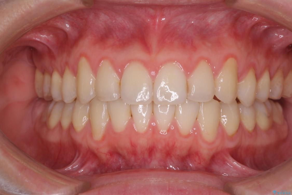 前歯の気になるデコボコをインビザラインで矯正治療 アフター