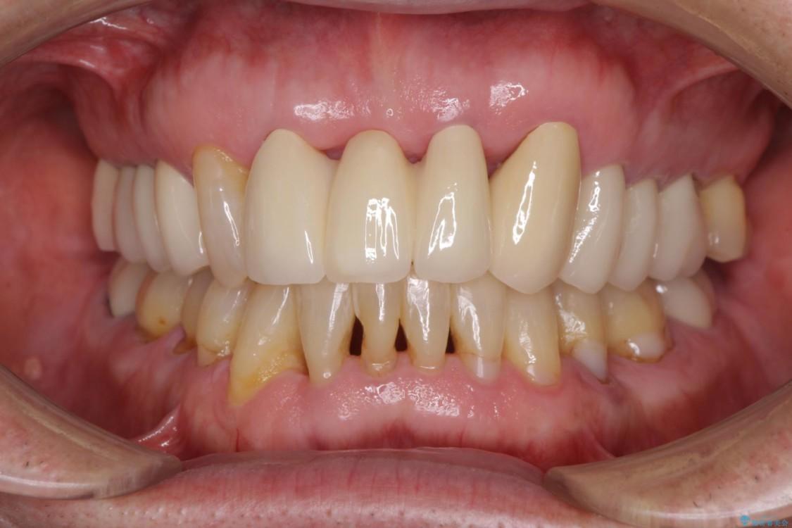 矯正治療と歯周外科処置を併用した審美歯科治療 アフター