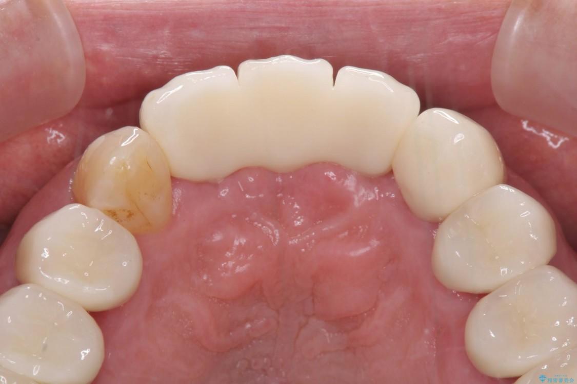 矯正治療と歯周外科処置を併用した審美歯科治療 治療後画像