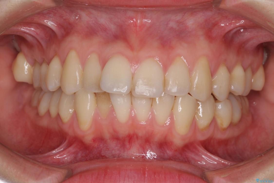 前歯の気になるデコボコをインビザラインで矯正治療 ビフォー