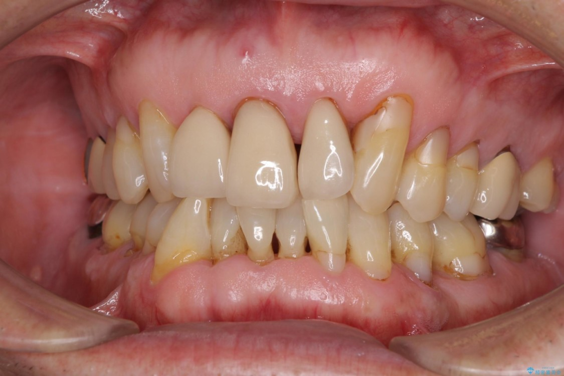 矯正治療と歯周外科処置を併用した審美歯科治療 ビフォー