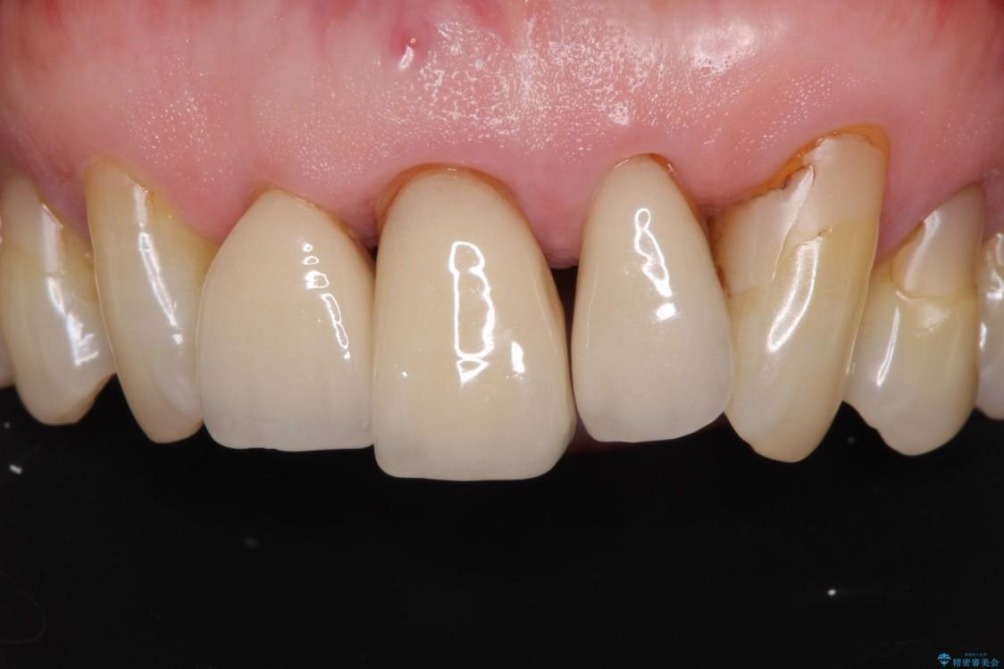 矯正治療と歯周外科処置を併用した審美歯科治療 治療前画像