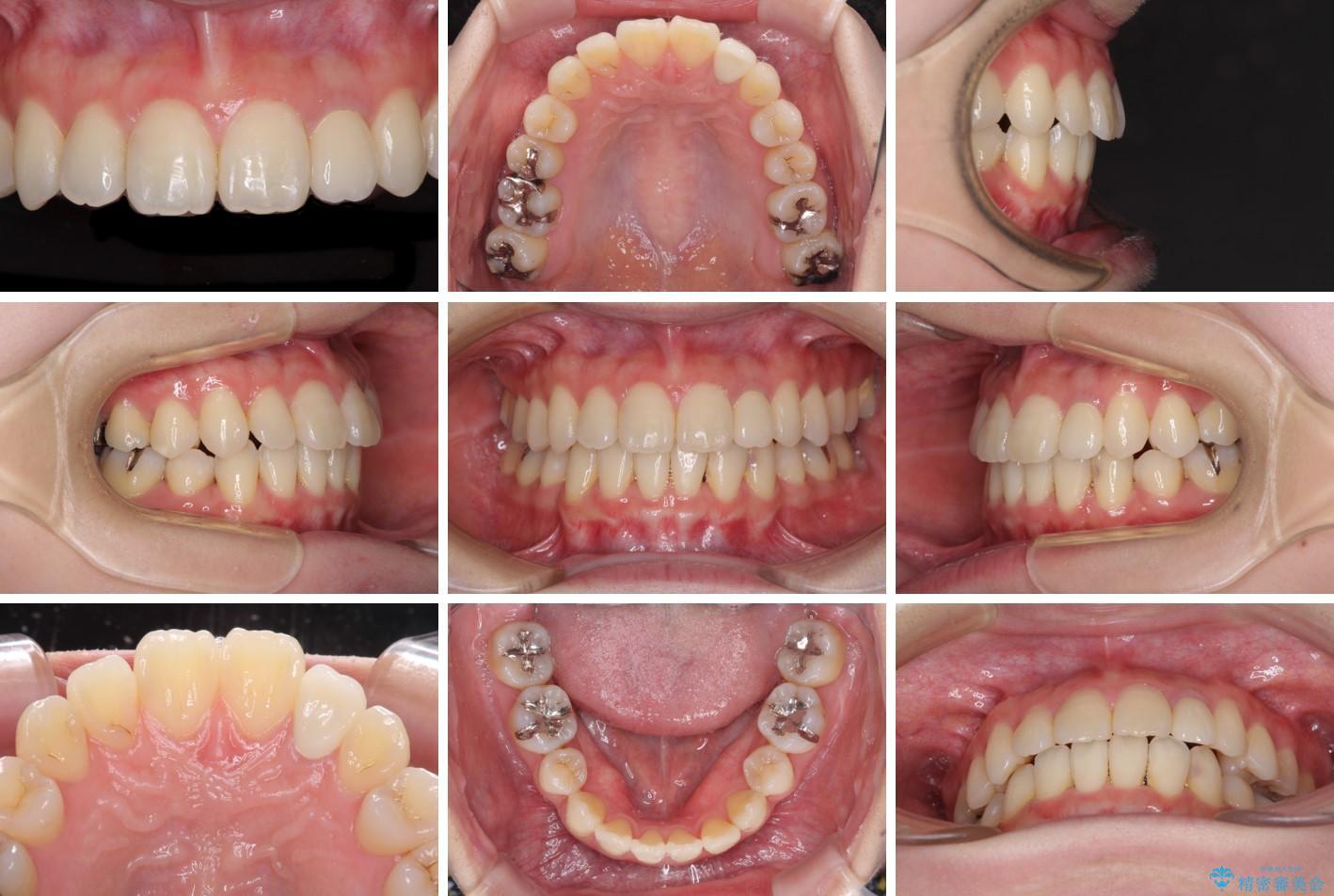 話しにくい歯並びの改善 抜歯矯正治療と前歯の審美治療 治療後画像