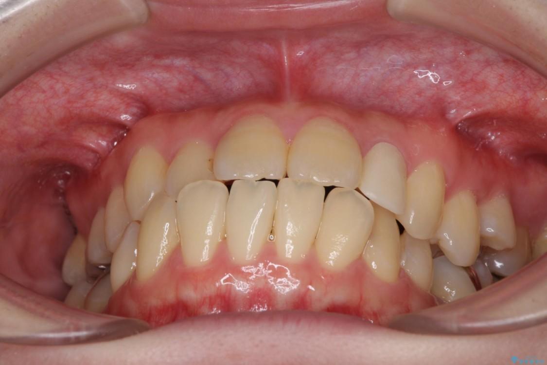 話しにくい歯並びの改善 抜歯矯正治療と前歯の審美治療 治療前画像