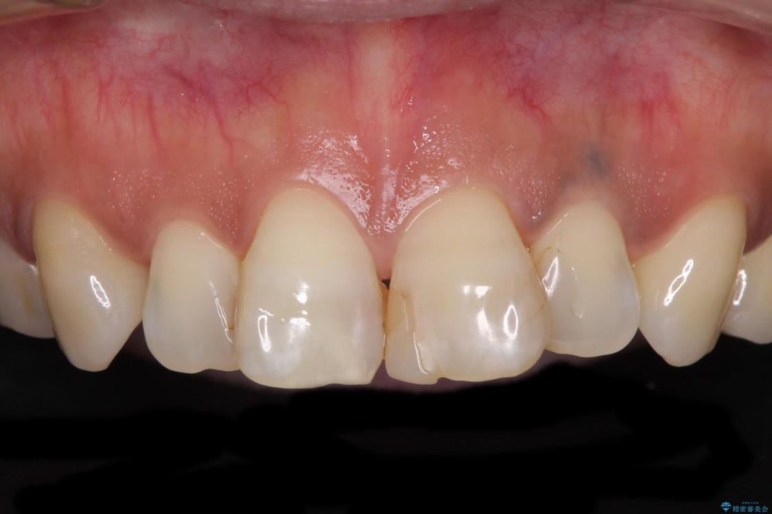 度重なる治療で前歯がしみる オールセラミッククラウンによる補綴治療 治療前画像