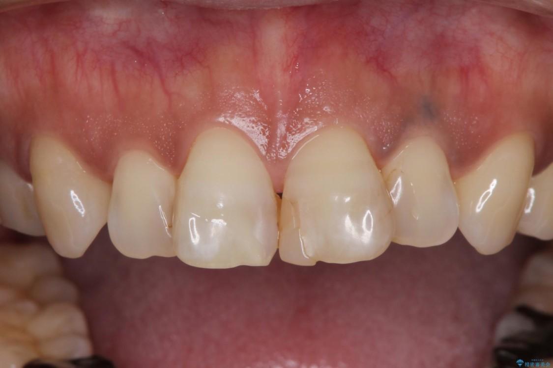 度重なる治療で前歯がしみる オールセラミッククラウンによる補綴治療 治療前