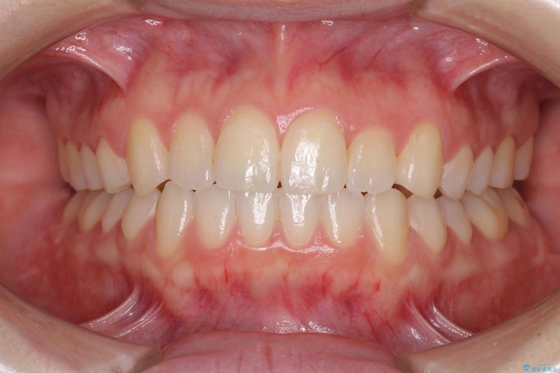 前歯の反対咬合をインビザライン矯正で改善 アフター