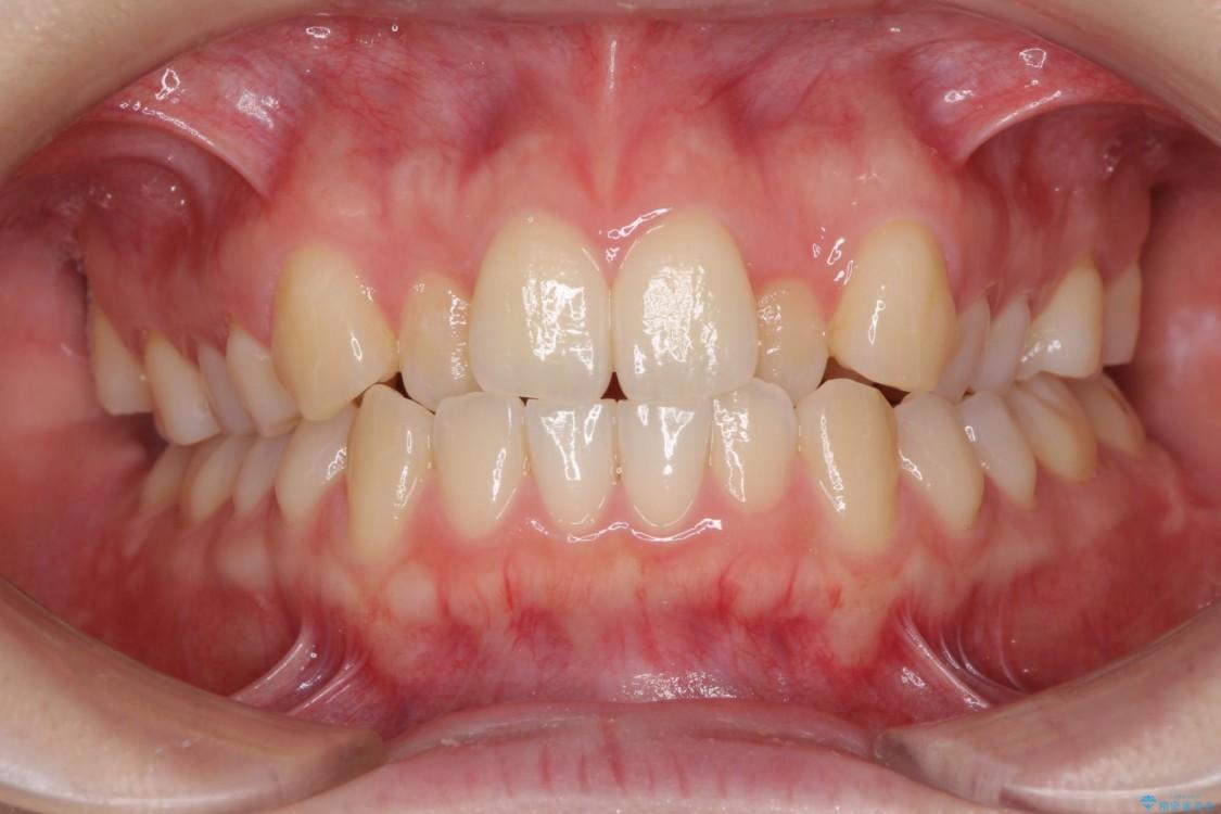 前歯の反対咬合をインビザライン矯正で改善 ビフォー