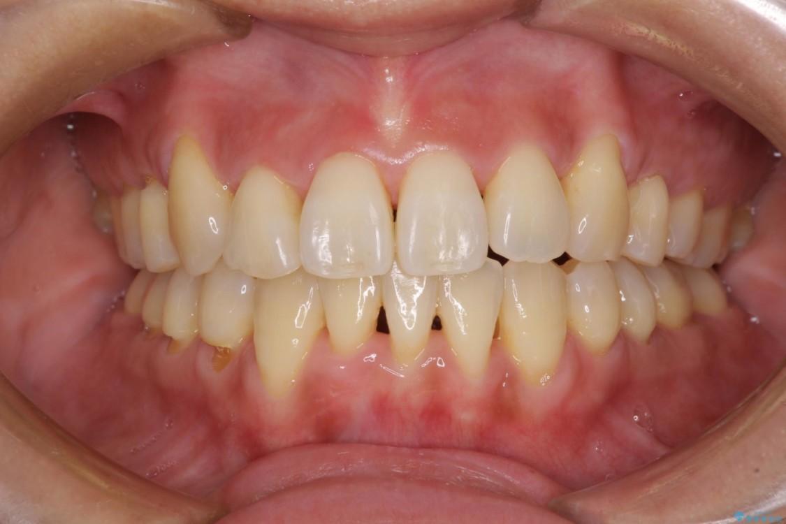 前歯のデコボコを治したい 費用を抑えたメタルワイヤーでの抜歯矯正 アフター