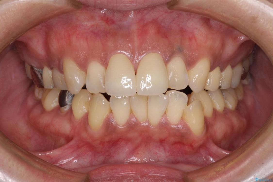 度重なる治療で前歯がしみる オールセラミッククラウンによる補綴治療 治療後画像