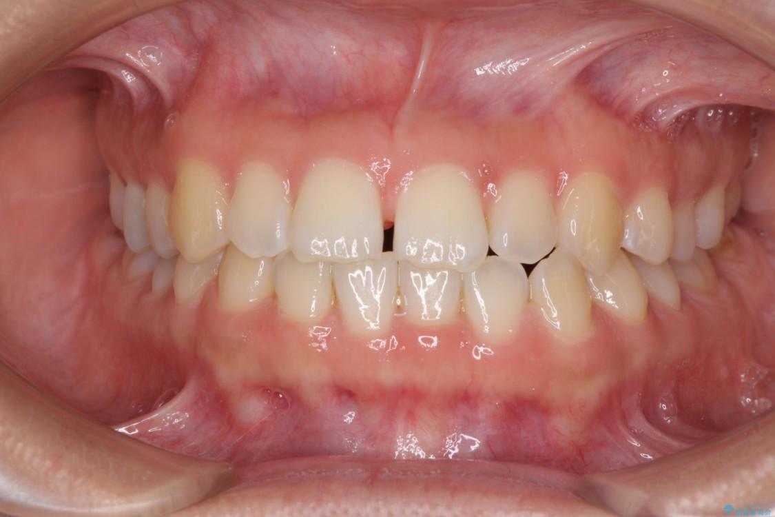 気になる前歯の隙間を短期間のワイヤー矯正で治療 ビフォー