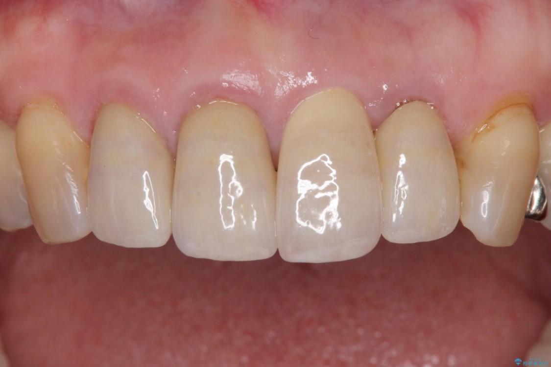 前歯が折れてしまった インプラントによる補綴治療 アフター
