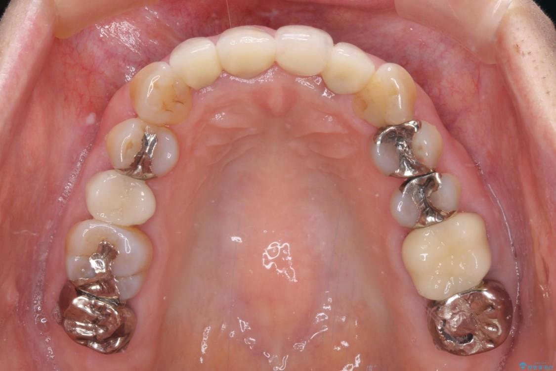 前歯が折れてしまった インプラントによる補綴治療 治療後画像