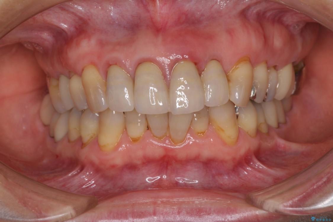 前歯が折れてしまった インプラントによる補綴治療 治療前画像