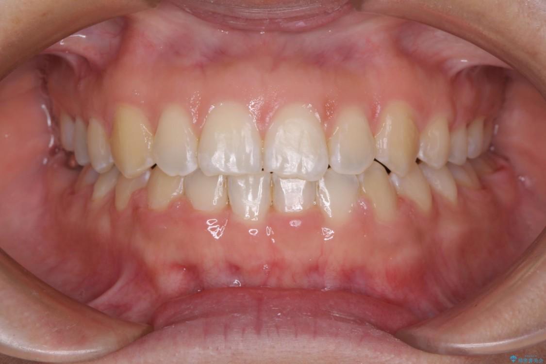 気になる前歯の隙間を短期間のワイヤー矯正で治療 アフター
