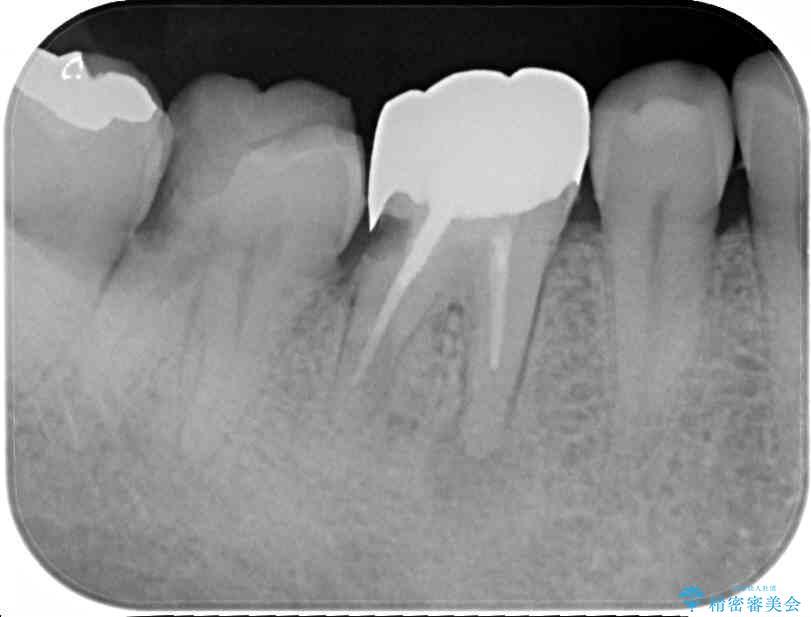 骨の中にまで及んだ深い虫歯 歯周外科処置を用いた補綴治療 治療前画像